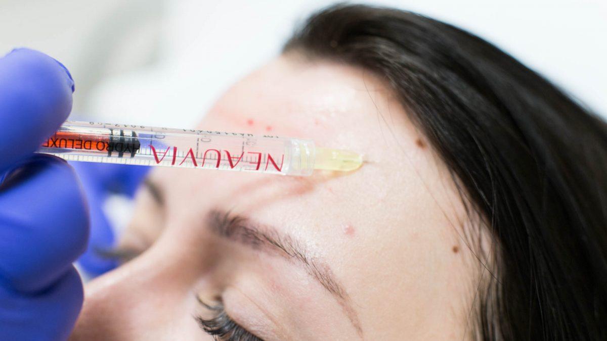 Mezoterapia igłowa skóry twarzy – sposób na piękną cerę