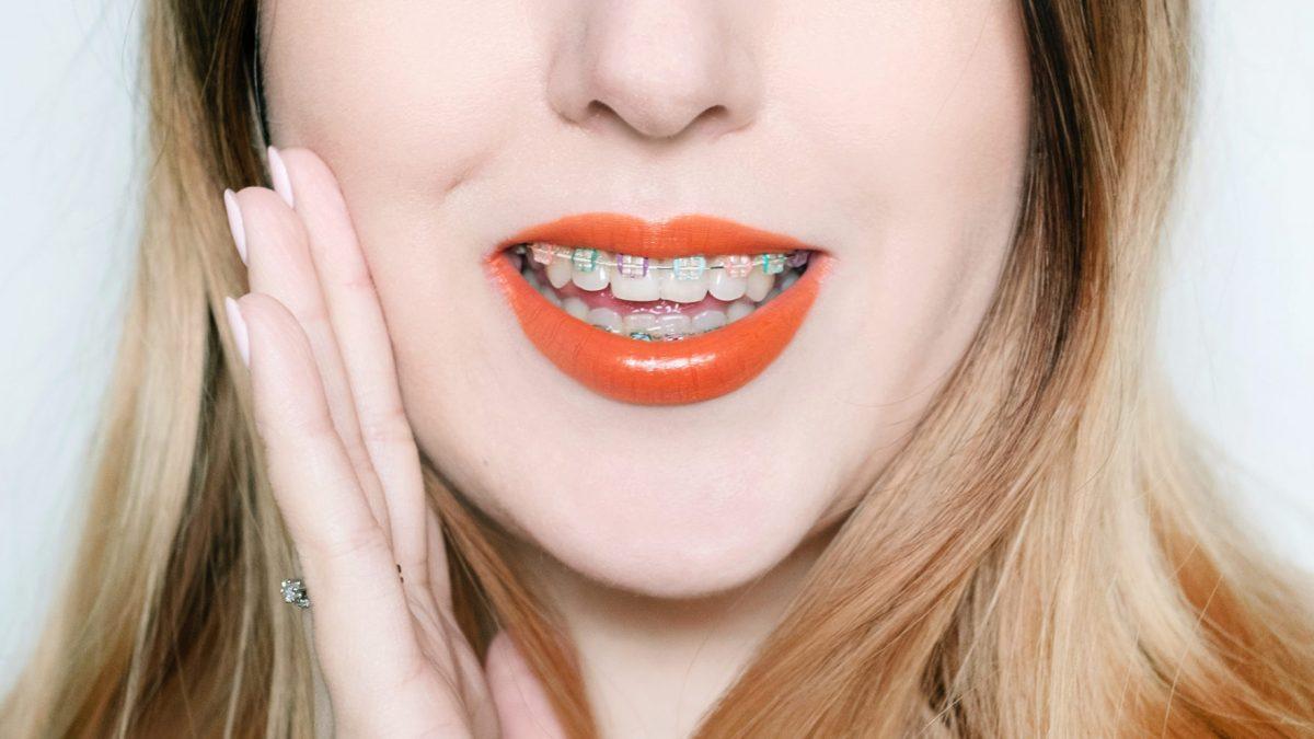 Aparat ortodontyczny – co powinniście o nim wiedzieć